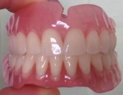 protezirovanie zubov 02 250x195 - Протезирование
