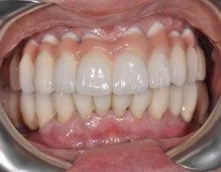 protezirovanie zubov 03 250x195 - Протезирование