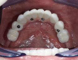 protezirovanie zubov 05 250x195 - Протезирование