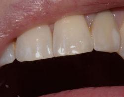 protezirovanie zubov 06 250x195 - Протезирование