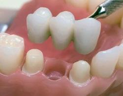 protezirovanie zubov 07 250x195 - Протезирование
