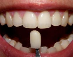protezirovanie zubov 08 250x195 - Протезирование