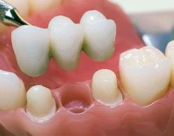 protezirovanie zubov 09 250x195 - Протезирование
