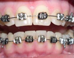 metallic braces 01 250x195 - Металлические брекеты