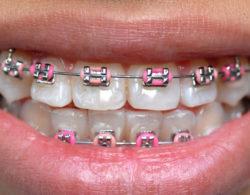 metallic braces 011 250x195 - Металлические брекеты