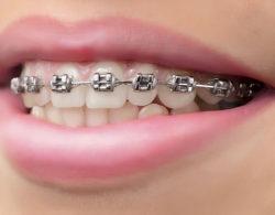 metallic braces 02 250x195 - Металлические брекеты