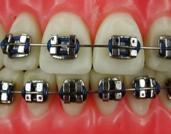 metallic braces 03 250x195 - Металлические брекеты