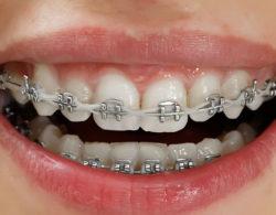 metallic braces 04 250x195 - Металлические брекеты