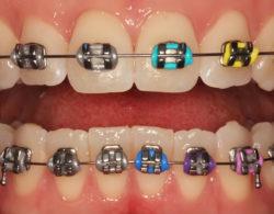 metallic braces 06 250x195 - Металлические брекеты