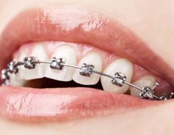 metallic braces 07 250x195 - Металлические брекеты