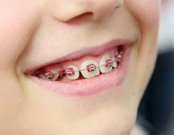 metallic braces 08 250x195 - Металлические брекеты