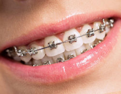 metallic braces 09 250x195 - Металлические брекеты