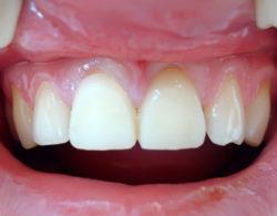 koronki na zuby 1 250x195 - Коронки на зубы