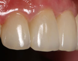 koronki na zuby 2 250x195 - Коронки на зубы