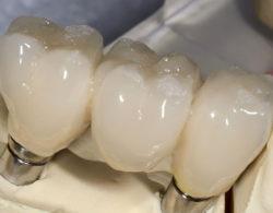 koronki na zuby 4 250x195 - Коронки на зубы