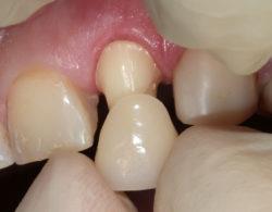 koronki na zuby 5 250x195 - Коронки на зубы