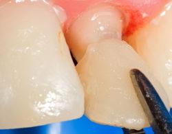 koronki na zuby 6 250x195 - Коронки на зубы