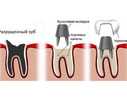 kult1 250x195 - Культевые вкладки на зубы