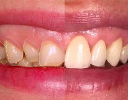 veneer1001 250x195 - Виниры на зубы