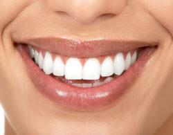 veneer1002 250x195 - Виниры на зубы