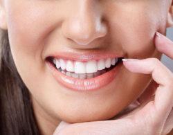 veneer1003 250x195 - Виниры на зубы