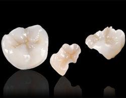 vkladki na zuby1 250x195 - Керамические вкладки