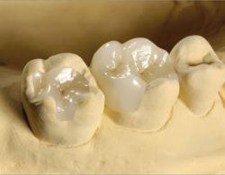 vkladki na zuby2 250x195 - Керамические вкладки