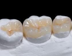 vkladki na zuby3 250x195 - Керамические вкладки