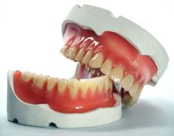 zubprotez02 250x195 - Зубные протезы