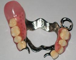 zubprotez03 250x195 - Зубные протезы