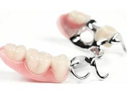 zubprotez04 250x195 - Зубные протезы