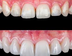 2 250x195 - Виниры на зубы