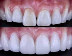Sloj 0 250x195 - Виниры на зубы