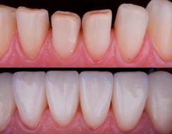 Sloj 1 250x195 - Виниры на зубы